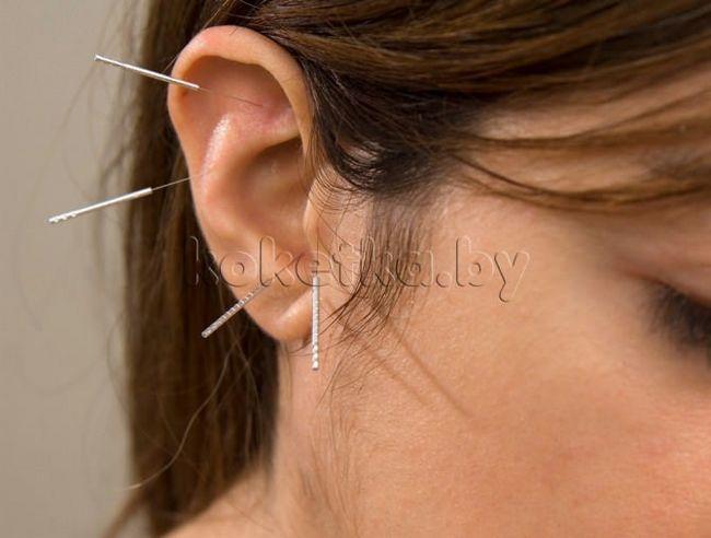 акупунктура вуха
