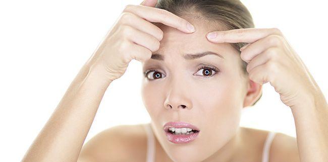 Дієта при акне допоможе зробити шкіру красивою
