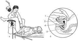 гінекологічний масаж